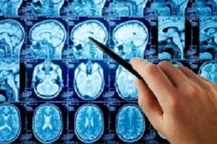 Disabilità acquisita da sclerosi multipla (SM): nuovi trattamenti