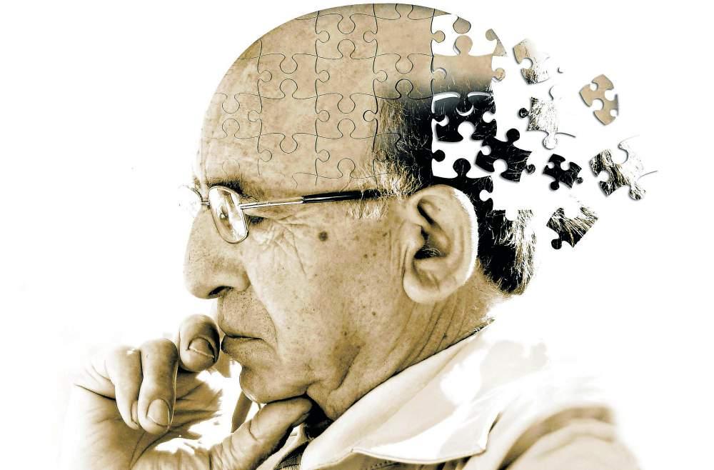 Alzheimer-origine