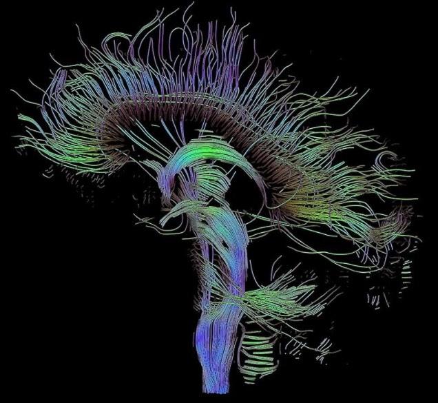 Così potremo diagnosticare in anticipo malattie degenerative e mentali grazie al connettoma