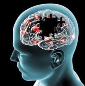 Scarsi risultati su Alzheimer e Parkinson: la casa farmaceutica Pfizer rinuncia a ricerca di nuovi farmaci
